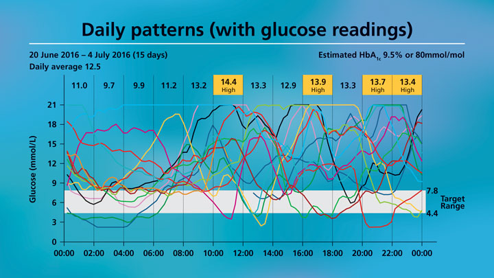 Insulin-Therapy—Surfing-the-Curve-7