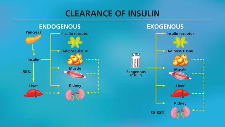 Insulin-management-in-renal-impairment-5