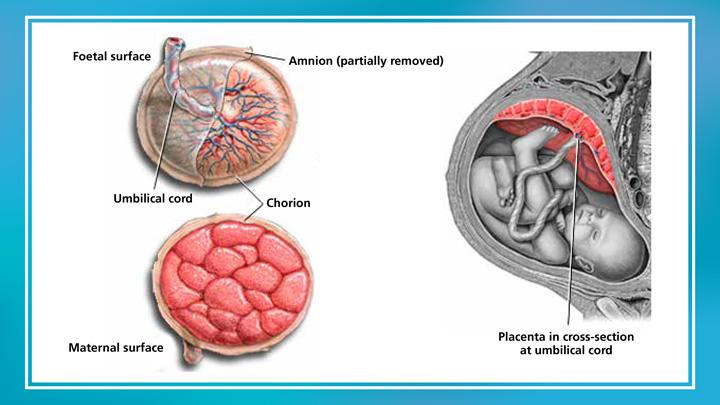 Presentation-_-Insulin-Therapy—Insulin-in-pregnancy—LAST-6