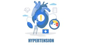 Hot topics in the management of hypertension